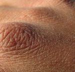 Schüssler Salze trockene Haut